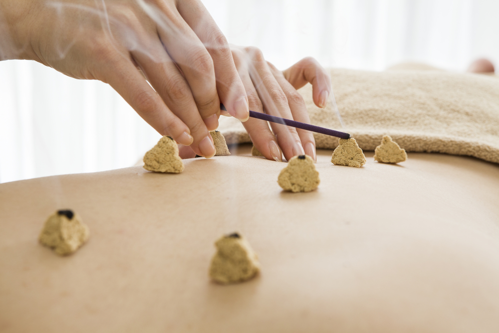 moxibustion treatment